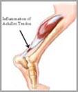 Achiles Tendonitis